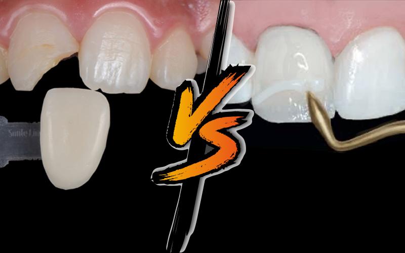 composite vs. porcelain veneers